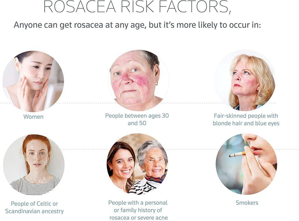 Prosacea Rosacea Gel Results